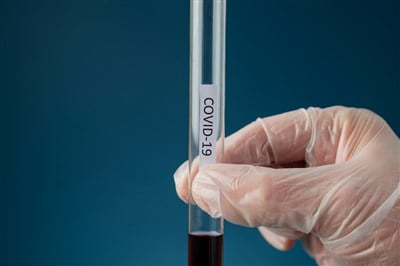 Regeneron (NASDAQ:REGN) Stock a Buy? Key Biotech Company Fighting COVID-19
